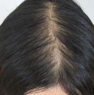 頭頂部のペタ髪