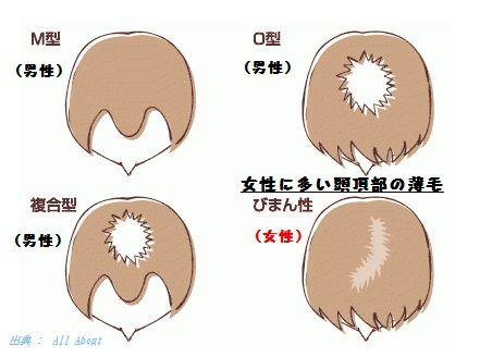 女性のFAGAは男性型脱毛症のAGAと同じホルモンの影響です