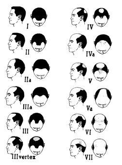 女性のFAGAの男性のAGAと同様に進行性の脱毛症です
