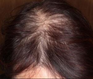 薄毛で地肌が目立つ女性のびまん性脱毛症