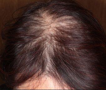 薄毛に悩む女性が多い