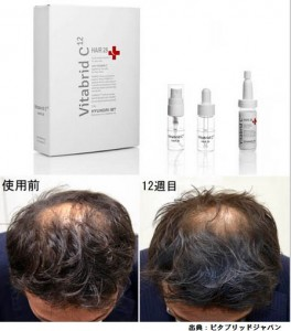 ビタブリッドCの育毛効果は本当です