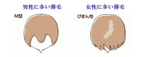 男性と女性の薄毛の違い