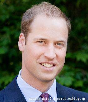 ウィリアム王子はM字ハゲ