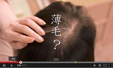 40代女性の薄毛が増えている