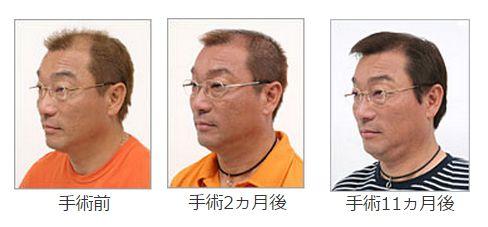 日本皮膚科学会が勧めているのはAGAでの自毛植毛
