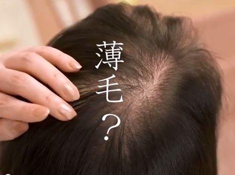 40代女性の薄毛のための育毛剤
