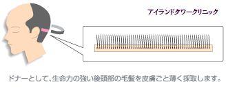 従来法による自毛移植