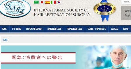 国際毛髪学会が自毛移植へ警告