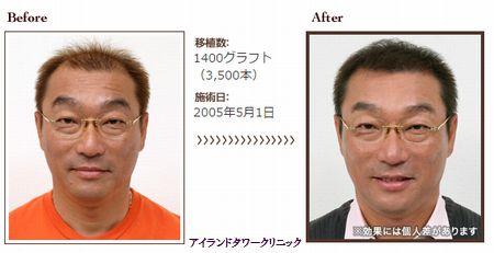 自毛移植の実際例