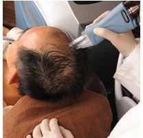 HARG療法で発毛促進