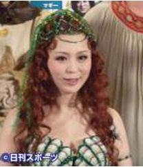 平野綾は牽引性脱毛症