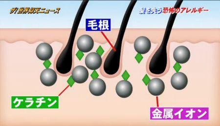 金属アレルギーとハゲの原因
