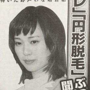 戸田恵梨香が円形脱毛症
