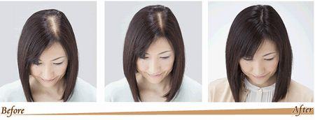 40代女性の薄毛を解消