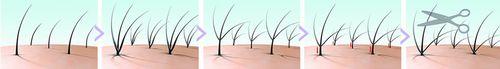 リッチアップ増毛法の特徴