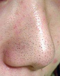 鼻の毛穴が目立つ