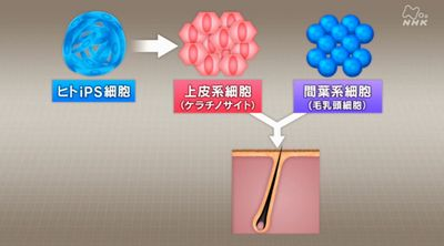 iPS細胞を用いた薄毛の再生医療