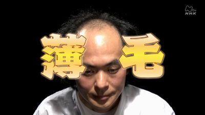 NHKサイエンスゼロ薄毛