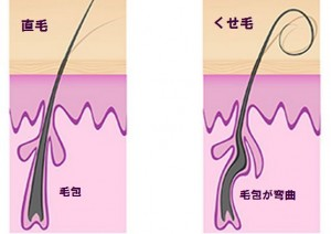 くせ毛と直毛の比較
