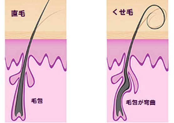 がん脱毛は回復するが毛質が変わることもある