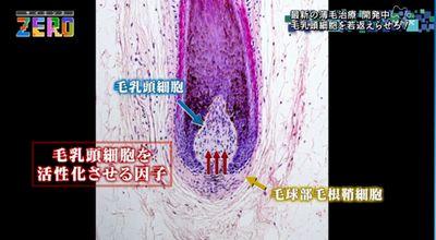 毛母細胞を使って薄毛の再生