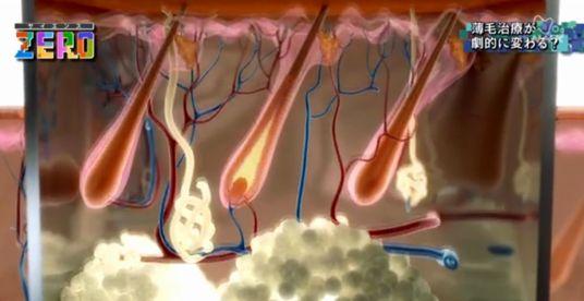 再生医療で毛母細胞を作る