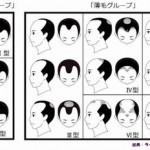 夫の髪が薄くなったときの育毛剤