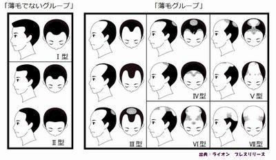 薄毛対策をすれば女性の深刻な薄毛も治ります
