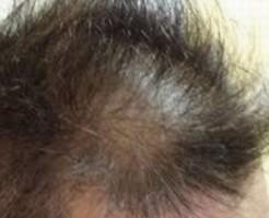 薄毛が気になりだしたら早期に薄毛対策を
