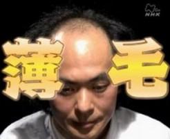 薄毛に悩んでいるのは日本人の3人に1人もいることが判明