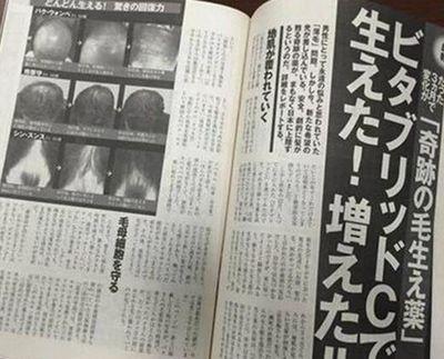 東国原氏が宣伝するビタブリッドCの発毛効果を検証する