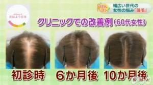 NKHけんコンで女性の薄毛を回復するための薄毛対策を放送しました