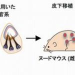 理研の薄毛の再生医療が一歩前進