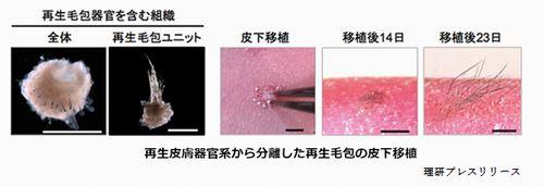 薄毛の再生医療を理研が加速化している
