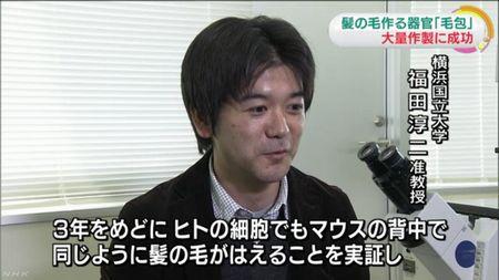 横浜国立大学が毛包の再生医療に成功したとNHKが報道
