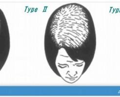 深刻な40代女性の薄毛には育毛剤