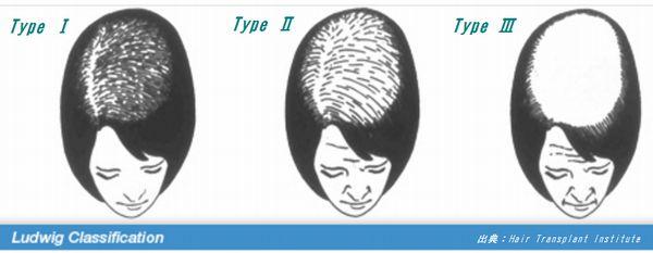 深刻な女性の薄毛はびまん性脱毛症