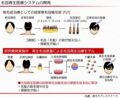 理研と京セラが頭髪の再生医療研究を開始した