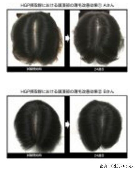 シャルレがプレスリリースしたタマゴ由来の新規育毛サプリメントを紹介します