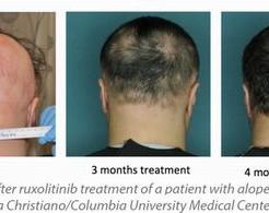 円形治療しなくても良いのは軽度の円形脱毛症