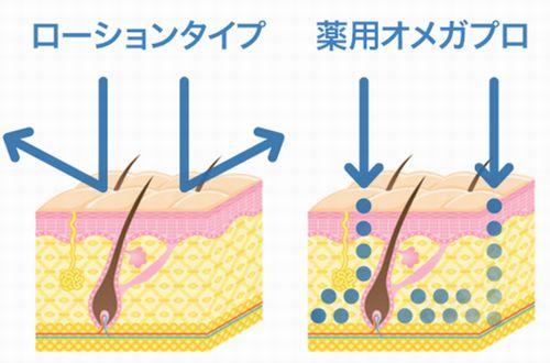 オメガプロは口コミで人気の育毛剤ですが効果を調べてみました