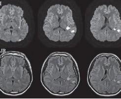 脳卒中もプロペシアの副作用です