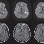 プロペシアの副作用は若齢性脳卒中が怖い