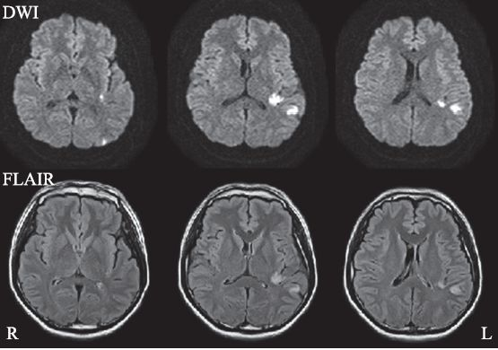 プロペシアの副作用で若齢性脳卒中や心筋梗塞が発生した