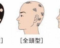 再発しやすい円形脱毛症を予防する方法