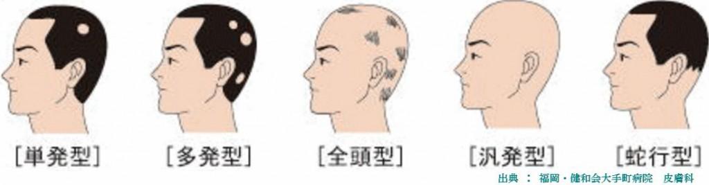 円形脱毛症を治療するには円形脱毛症の種類や原因を理解してください