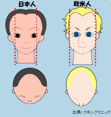 アメリカの薄毛治療の現状をアメリカ滞在中に調べてきましたが日本の方が進んでいます