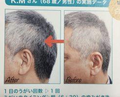 薄毛のビフォーアフターの写真は禁止になる?