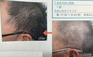 薄毛や白髪が治る白ごま油うがいのやり方は簡単
